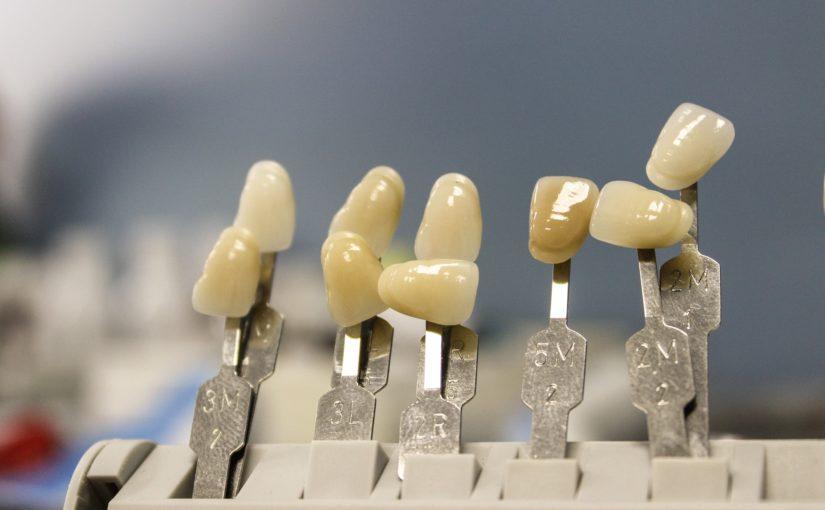 Piękne zdrowe zęby oraz wspaniały uroczy uśmieszek to powód do zadowolenia.